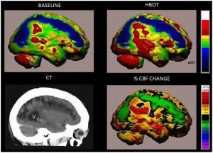 komora hiperbaryczna - regeneracja neuronów